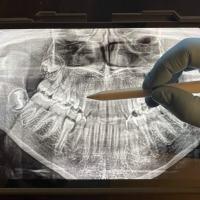 Radiografías, qué debemos saber